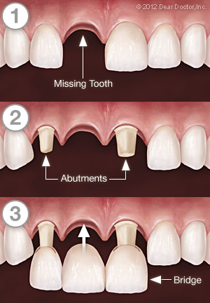 Dental Bridgework - Step by Step.